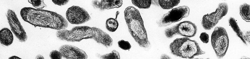 geuren ontstaan door bacterien zoals op deze foto