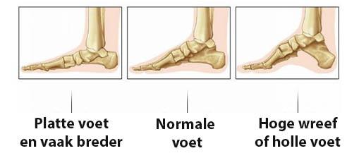 Voorbeelden van verschillende vormen voeten